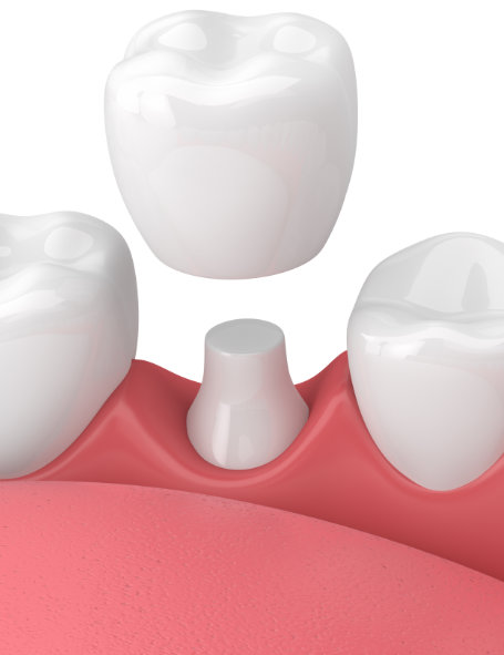 dental crowns sherman oaks