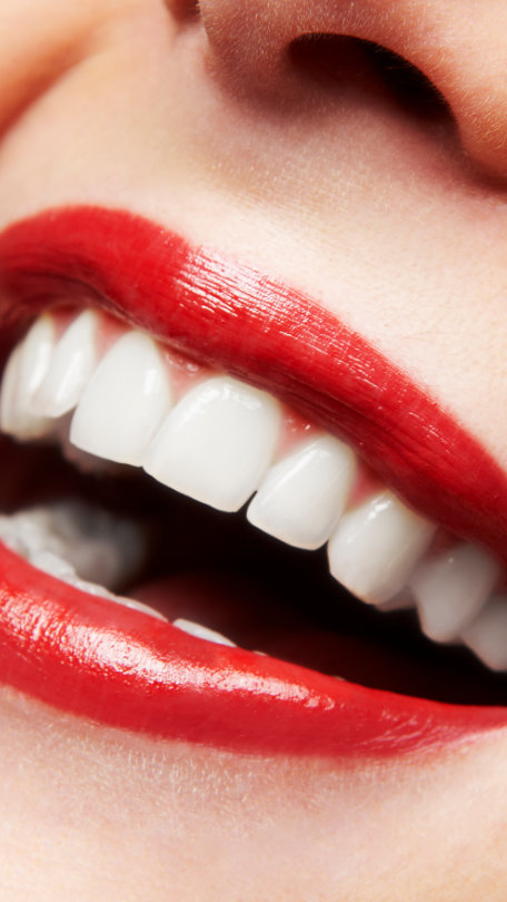 red Lips smile with porcelain veneers